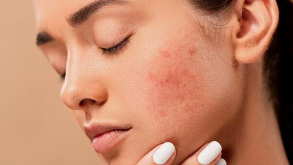 manchas-e-cicatrizes-de-acne:-entenda-o-que-fazer-para-evitar!