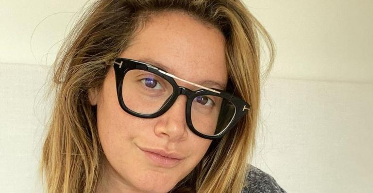 """ashley-tisdale-relembra-cirurgia-plastica-aos-20-anos-e-desabafa:-""""fui-julgada-e-me-fizeram-sentir-vergonha"""""""